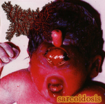 VISCERA INFEST - sarcoidosis CD